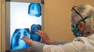علماء : كورونا يثير استجابة مناعية قوية لدى المصاب به تعيق مكافحه العدوى