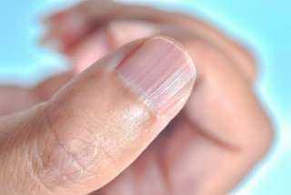تطوير فيروس كورونا.. اكتشف الإصابة بفيروس كورونا من أظافرك ؟
