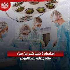 بالفيديو   عملية نادرة استخراج 6 كيلو شعر من بطن فتاة مصابة بهذا المرض